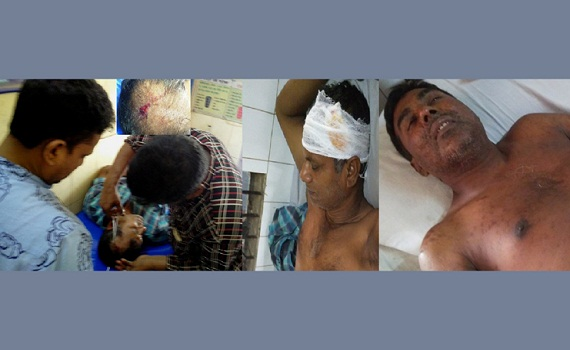 মির্জাপুরে হামলায় দুই আ.লীগ নেতাসহ আহত ৪