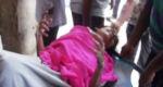 নাটোরে চুলা বিস্ফোরণে তিন কলেজ ছাত্রী দগ্ধ, দু'জনকে ঢাকায় নেয়া হচ্ছে